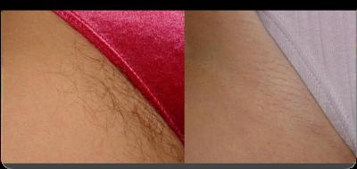 laser-haarentfernung-bikinizone.png
