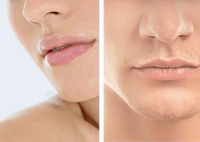 Je ein Bild einer Frau und eines Mannes mit aufgespritzten Lippen | hautarzt-bubenberg.ch
