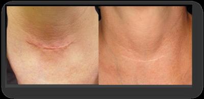 Vorher / nachher Bild der Narbe eines Luftröhrenschnitts, Narbe ist kaum mehr sichtbar danach | hautarzt-bubenberg.ch