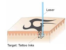 Schematische Darstellung der Funktionsweise des Lasers | hautarzt-bubenberg.ch