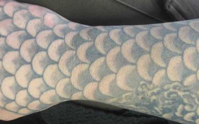 Tattooentfernung Bern: Fisch-Schuppen-Tattoo vor der Entfernung | hautarzt-bubenberg.ch