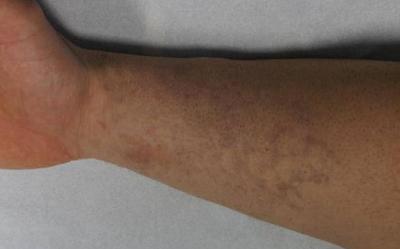 Tattooentfernung Bern: Fisch-Schuppen-Arm-Tattoo nach 4 Behandlungen | hautarzt-bubenberg.ch