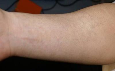 Tattooentfernung Bern: Fisch-Schuppen-Arm-Tattoo komplett entfernt nach 6 Behandlungen | hautarzt-bubenberg.ch