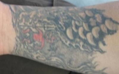 Tattooentfernung Bern: Fisch-Schuppen-Arm-Tattoo vor Entfernung | hautarzt-bubenberg.ch