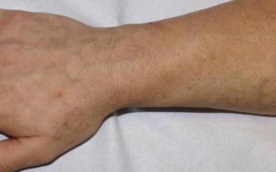 Tattooentfernung Ergebnisse: Fisch-Schuppen-Tattoo kaum mehr sichtbar nach 4 Behandlungen | hautarzt-bubenberg.ch