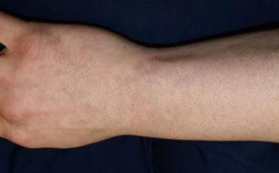 Tattooentfernung Ergebnisse: Fisch-Schuppen-Tattoo komplett entfernt nach 6 Behandlungen | hautarzt-bubenberg.ch